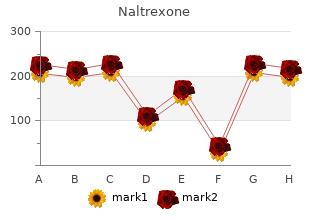 cheap naltrexone 50mg with mastercard