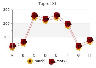 generic 100 mg toprol xl otc